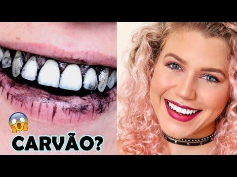 Incrivel Clareamento Dental Com Carvao Youtube