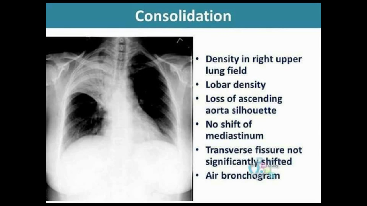 How to read Normal Chest X-ray & Other, Disease diagnosis in X-ray ...