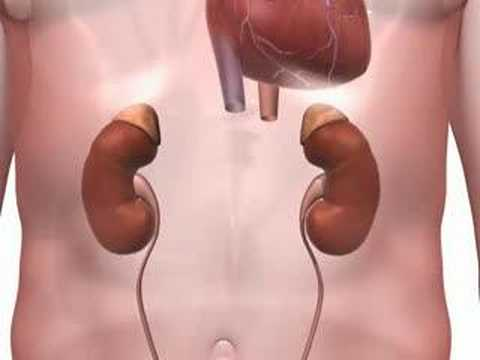 5 Major Effects of High Blood Pressure - 3D Medical Animation