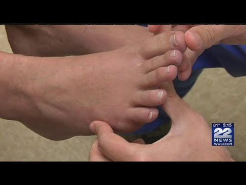 Preventing athlete's foot in the hot summer months