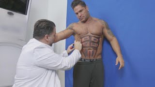 How Liposuction Gave 'Jersey Shore's' Ronnie Defined 6-Pack Abs