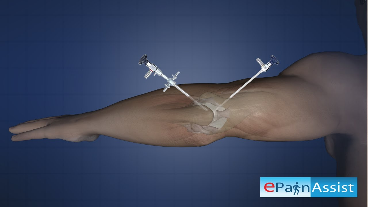 Elbow Joint Arthroscopy (Diagnostic) - To Identify The Cause Of ...