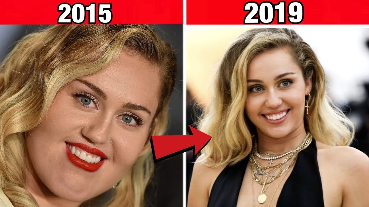 Famous Singers Who Paid A Fortune to Look Completely Different ...