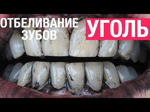 Как отбеливать зубы активированным углем