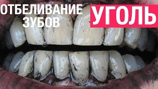 Как отбелить зубы в домашних условиях активированным углем