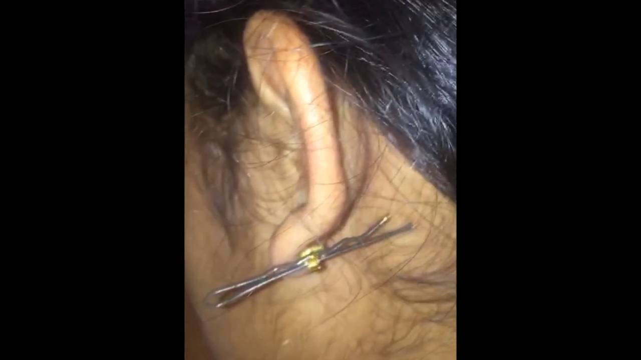 How To Remove A Stuck Earring In Ten Seconds Youtube