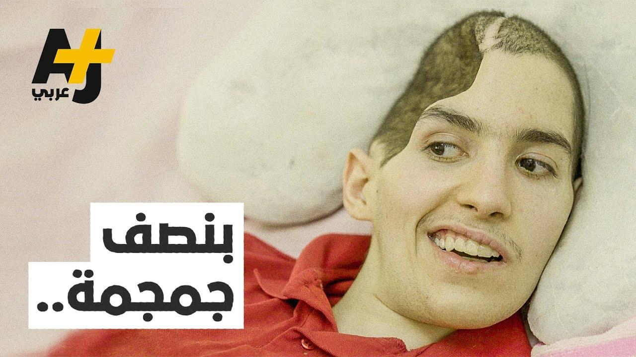 حادثة سير خطيرة تفقد هذا الشاب المغربي نصف جمجمته.. شاهدوا قصته