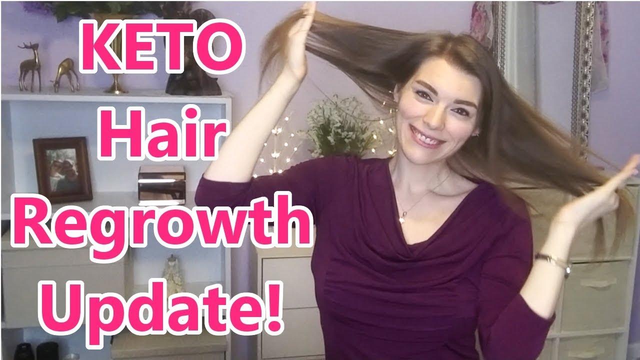 hair loss on keto diet