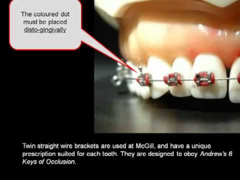 How important is the position of your orthodontic braces?