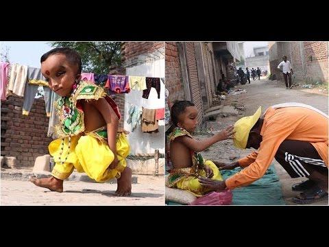 Tại Ấn Độ, cậu bé có vẻ ngoài kì lạ này được tôn làm thần linh