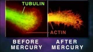 Neuro-Toxin - Mercury Melts Your Brain