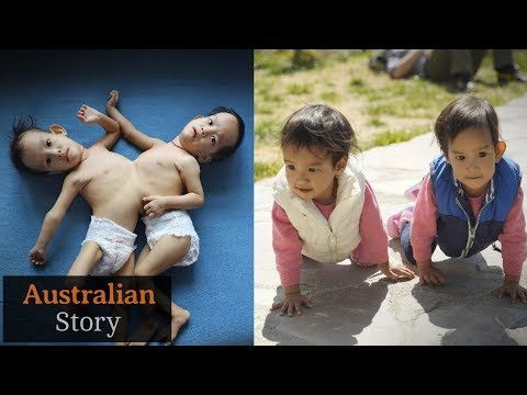 The Journey Of Conjoined Twins Nima And Dawa | Australian Story