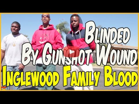 Munchie B from Inglewood Family Bloods lost vision after getting shot in head