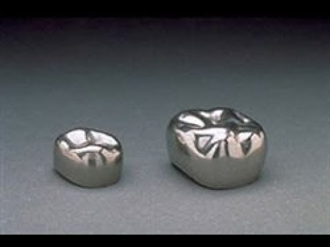 Зубные протезы-штампованная коронка