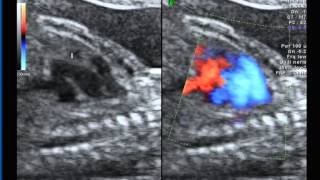 Fetal echocardiography of a complex case of TGA with coarctation using colour Doppler