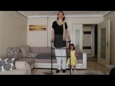 The world's tallest  girl in Turkey