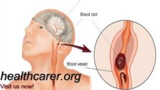 Anoxic Brain Injury