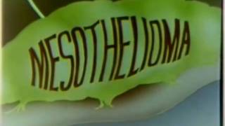 Asbestos Disease Mesothelioma 1980 US Navy