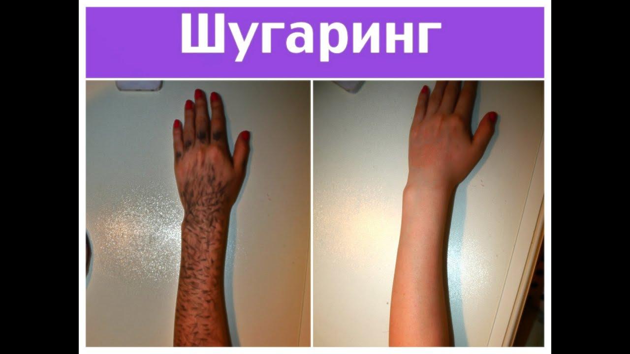 шугаринг в вконтакте украина