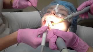 Ультразвуковая чистка зубов + Air Flow (Аир Флоу), осветление, отбеливание(Благодаря современным достижениям в области профессионального ухода за зубами, чистка зубных камней и..., 2015-04-27T19:17:57.000Z)