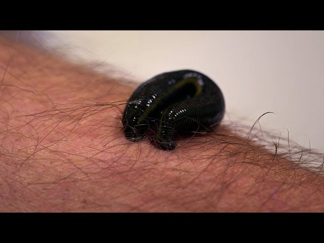 Michael Mosley is bitten by a leech – Infested! Living with Parasites – BBC Four