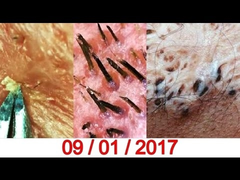 Finally Gone Blackhead Nose | whitehead Remover EVER !! - YouTube