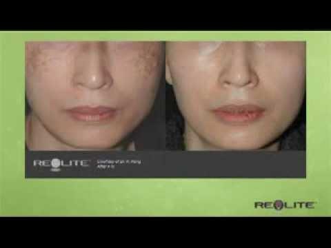 Revlite laser nashville tn dr j j wendel plastic for Looking glass plastic surgery tattoo removal