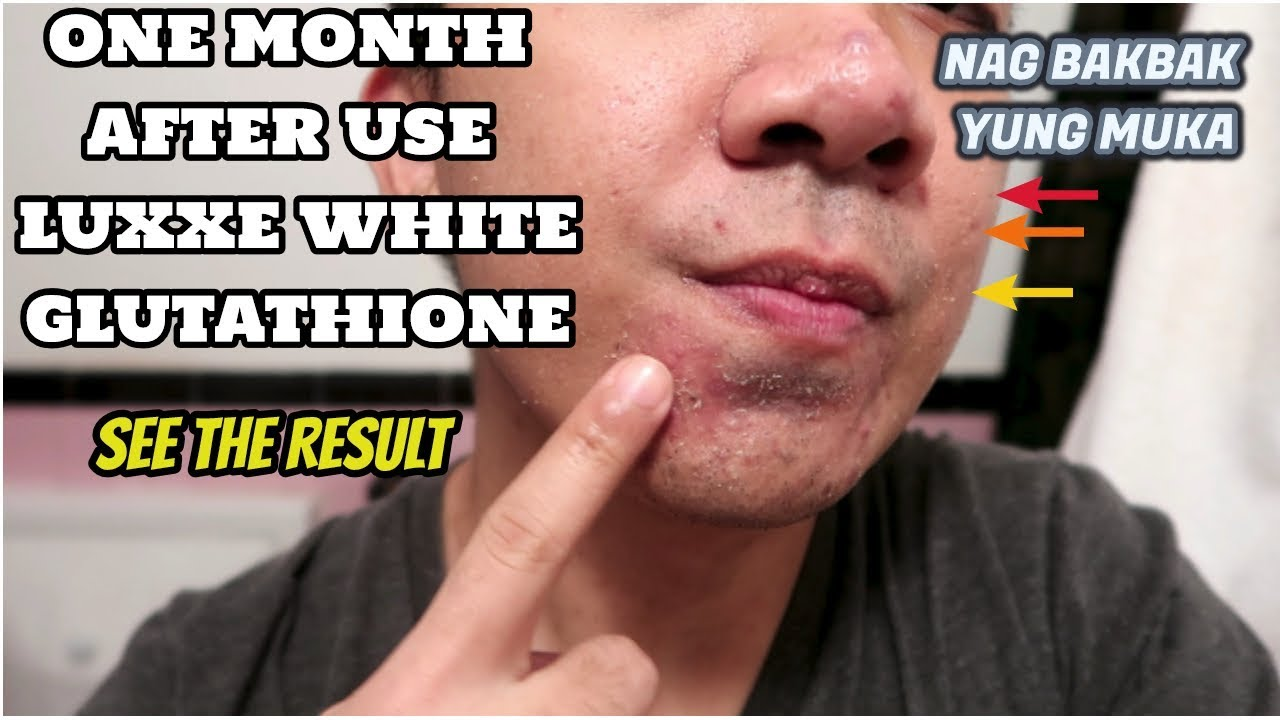 LUXXE WHITE ENHANCE GLUTATHIONE after 1 month of use| Shark Oil Review and  Application| HD