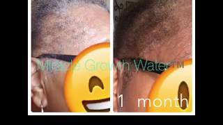 STOP HAIR LOSS GROW YOUR HAIR BACK USING MIRACLE GROWTH WATER ™️