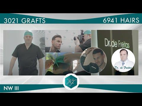 Injerto Capilar Técnica FUE – 3.021 Folículos (6.941 Pelos) – Dr. Rafael de Freitas
