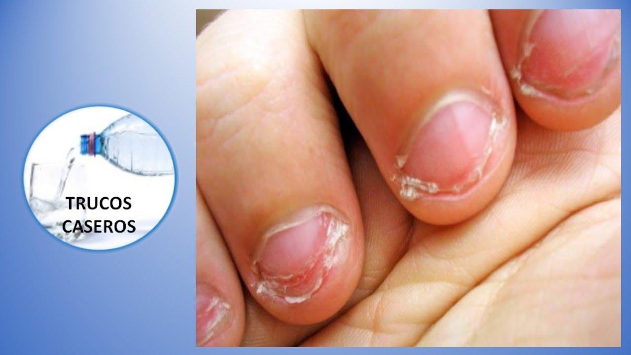 Consejos caseros para no morderse las uñas , Remedios naturales con productos caseros.