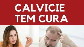 Calvície tem cura? Verdades e mitos sobre o problema de alope…