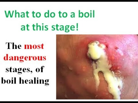 A Video Showing How To Heal A Boil After Its Been Popped