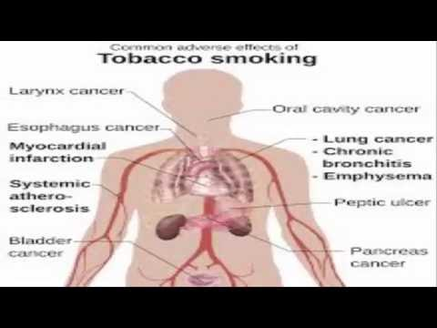 effects of smoking tobacco 20
