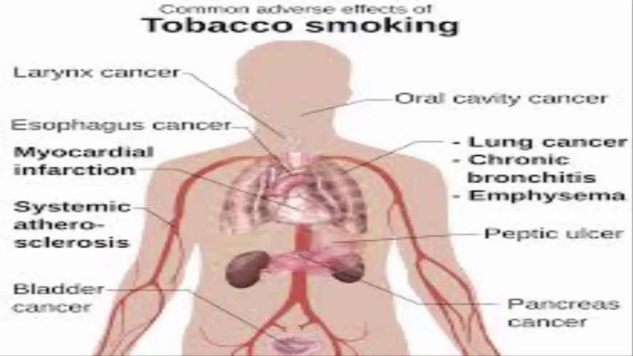 effects of smoking tobacco  effects of smoking tobacco 20