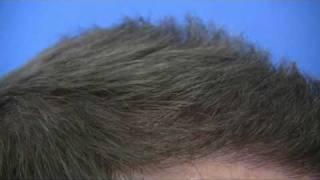 5000 Graft Hair Transplant Surgery