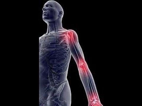 Болят суставы – что делать? Причины и лечение