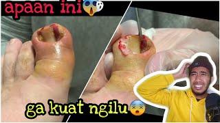 Nyeri pada telapak kaki atau plantar fasciitis bisa menyerang siapapun pada segala umur, apakah kamu.