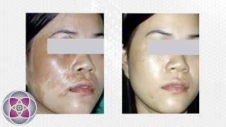 Laser Birthmark Removal Treatment - Does it Work?
