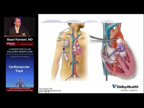 Surgery for Valvular Disease (Basel Ramlawi, MD) Sunday, August 21, 2016