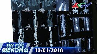 """Thiếu nữ 15 tuổi cột sống cong vẹo như chữ """"S""""   TIN TỨC MEKONG - 10/01/2018"""