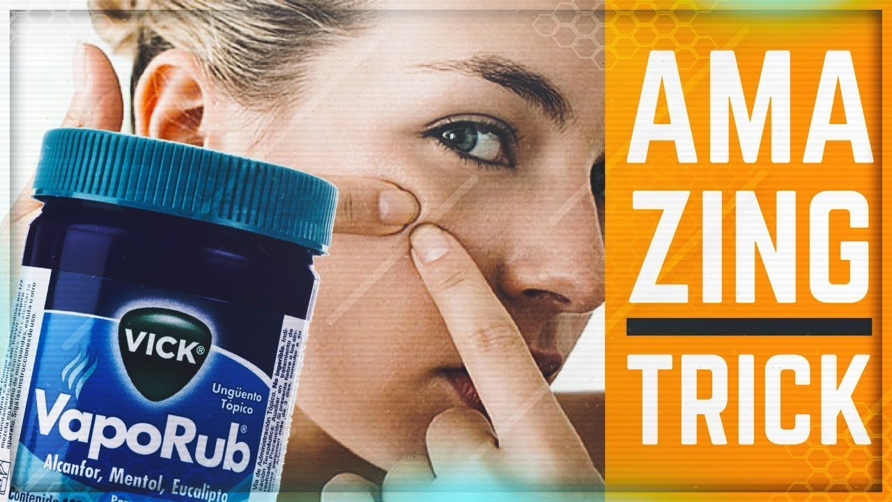 [VIDEO] - Use Vicks Vaporub To Cure Your Acne Overnight At Home 5
