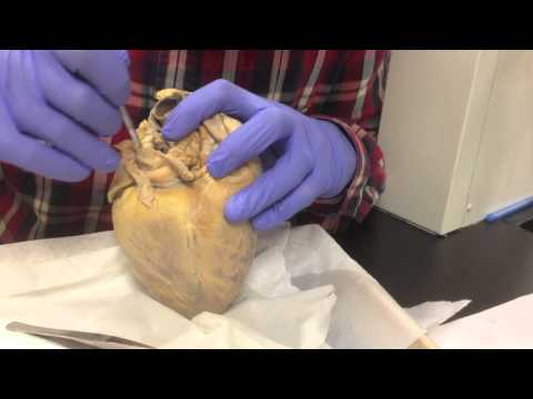Sheep Heart Dissection: External Structures And Blood Vessels
