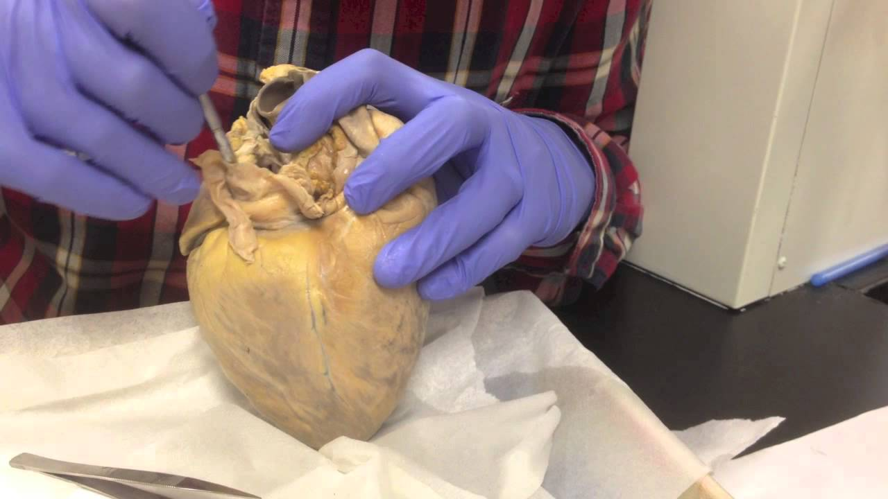 Sheep heart dissection external structures and blood vessels sheep heart dissection external structures and blood vessels youtube pooptronica