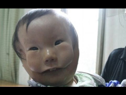 Faces Have Deformation Child Due To 'mask Appears Two Boy' China's