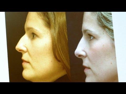Rinofast antes y despues de adelgazar