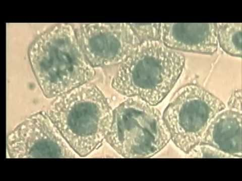 1.6 Skill: Identifying Stages Of Mitosis Under A Microscope And On A Micrograph