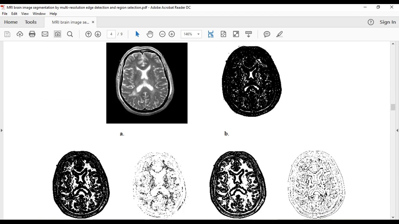 IMAGE SEGMENTATION BY MULTI-RESOLUTION EDGE DETECTION AND REGION SELECTION  FOR MRI BRAIN
