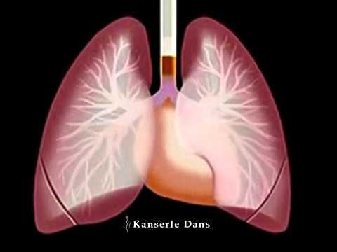 Sigara Akciğer Kanserine Yol Açar