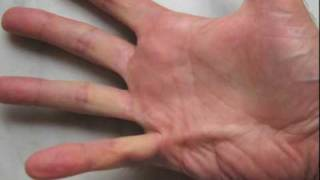needle aponeurotomy for dupuytren s contracture